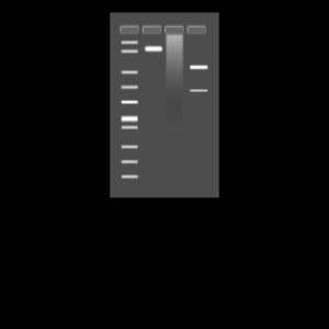 Biologie Gelelektrophorese