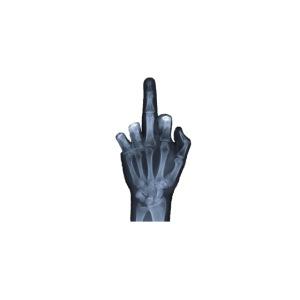 Röntgen Hand