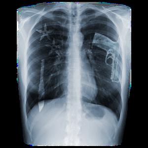 X-Ray (für weiße Shirts)
