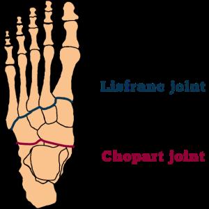 Fuß Knochen Amputationslinien Diabetes OP Chirurg