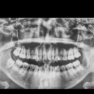 Film Mundhöhle Zähne Medical Xray Jaw Patient