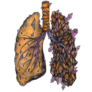Lungenkristallfarbe