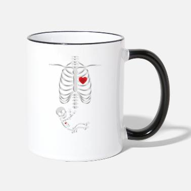 Pregnancy X-Ray X-ray image of pregnant skeleton baby mother - Two-Tone Mug