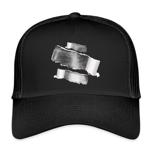 Chest X-Ray - Trucker Cap