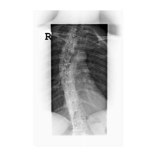 Skoliose Verkrümmung der Wirbelsäule Röntgenbild - Poster 20x30 cm