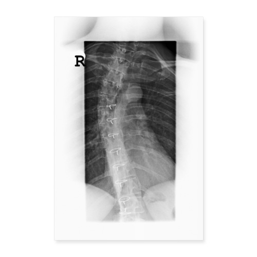Skoliose Verkrümmung der Wirbelsäule Röntgenbild - Poster 60x90 cm