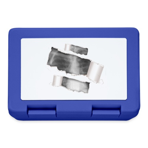 Chest X-Ray - Lunch box